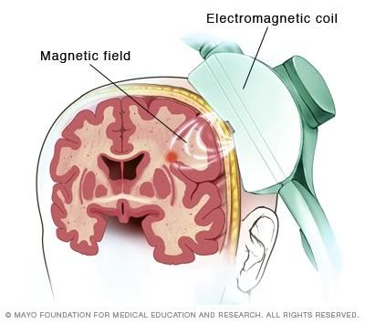 Transcranial Magnetic Stimulation How It Works